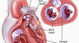 Kulakçılar Arası Delikle Bİrlikte Görülen Akciğer Atar Damar Tıkanıklığı Nedir, Nasıl Oluşur