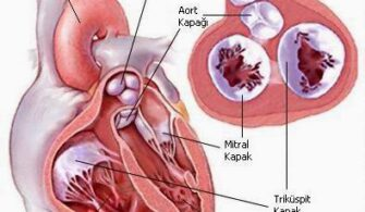 Kulakçılar Arası Delikle Bİrlikte Görülen Akciğer Atar Damar Tıkanıklığı Nedir, Nasıl Oluşur ?