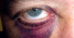 Amiloidoz Hastalığı