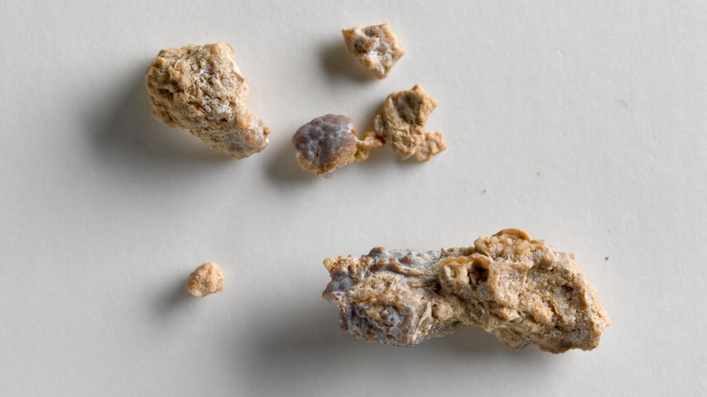 Mineralli Suyun Kalsiyum Oksalat Böbrek Taşı Oluşumunu Azaltması Araştırmaları
