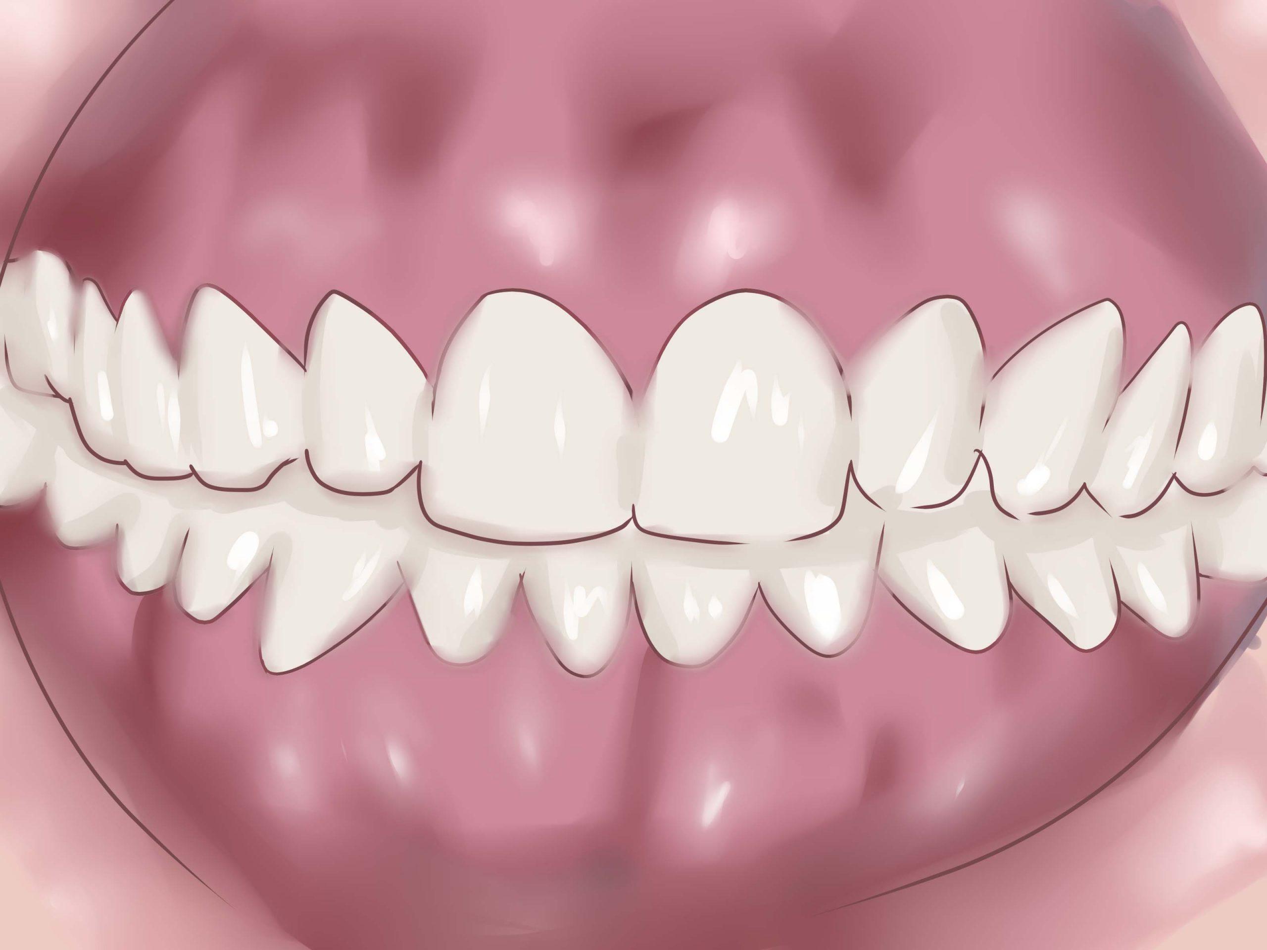 Diş Eti Nedir? Çekilmesine Ne İyi Gelir? 2