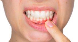 Diş Eti Nedir? Çekilmesine Ne İyi Gelir?