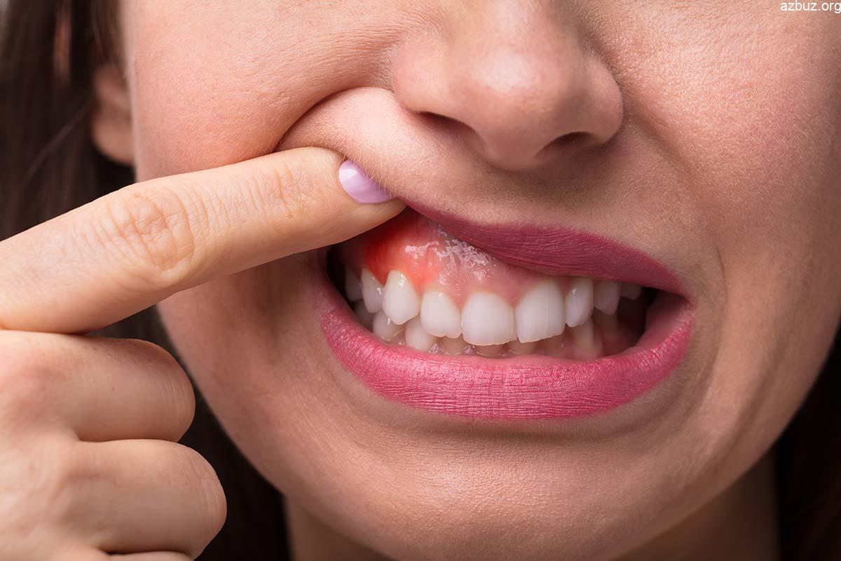Diş Eti Nedir? Çekilmesine Ne İyi Gelir? 1