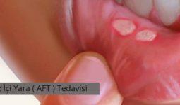 Ağız İçi Yaraları (Aft) Tedavisi 1