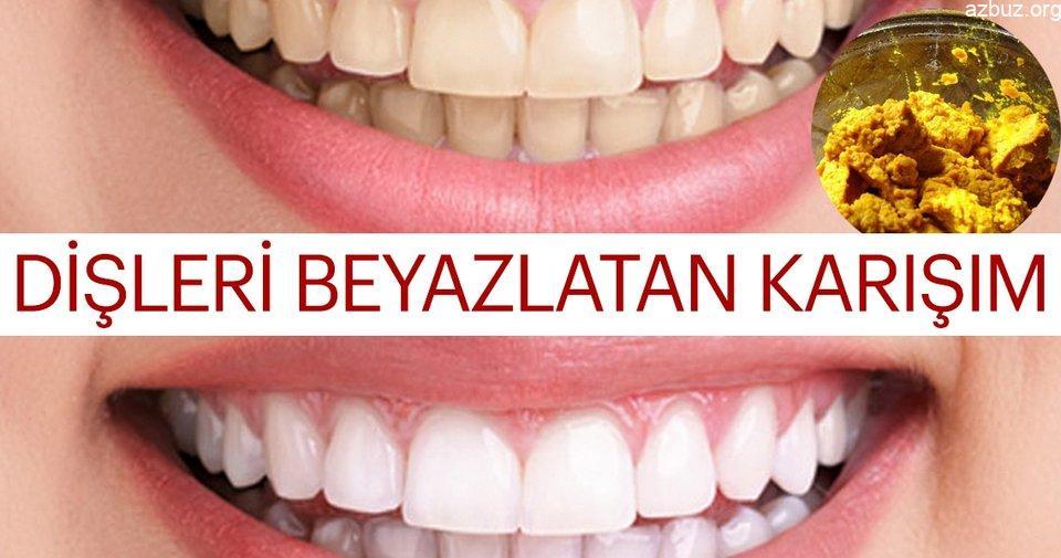 2 Dakika İçinde Diş Beyazlatmak Mümkün mü? 2