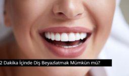 2 Dakika İçinde Diş Beyazlatmak Mümkün mü? 8